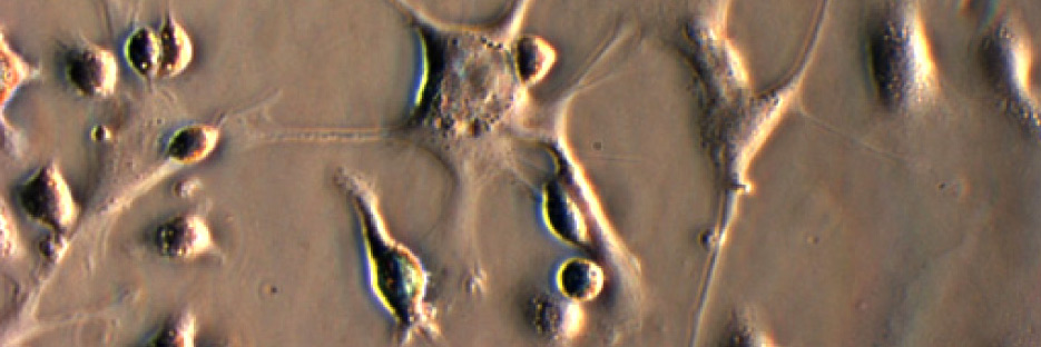 dendritic-cells-breast-cancer-stem-cells