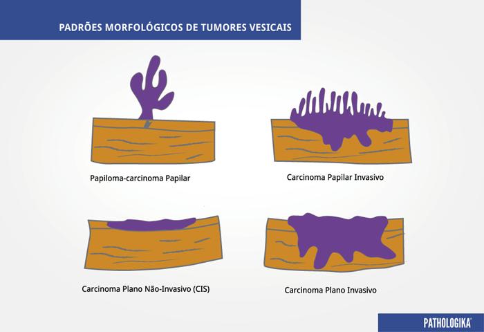 Figura C2 – Padrões Morfológicos de Tumores Vesicais