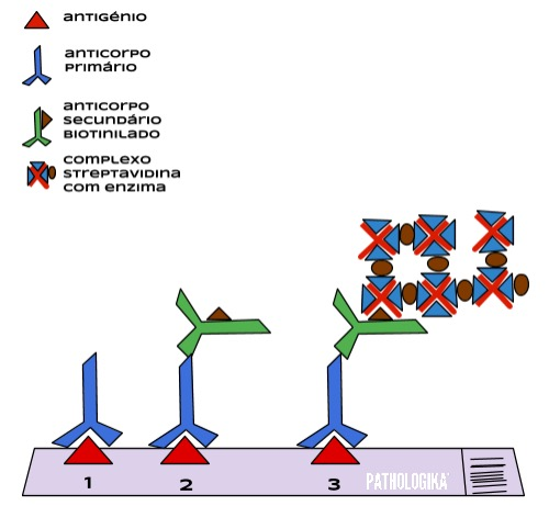 Figura I12 - Método sABC (streptavidina-biotina)