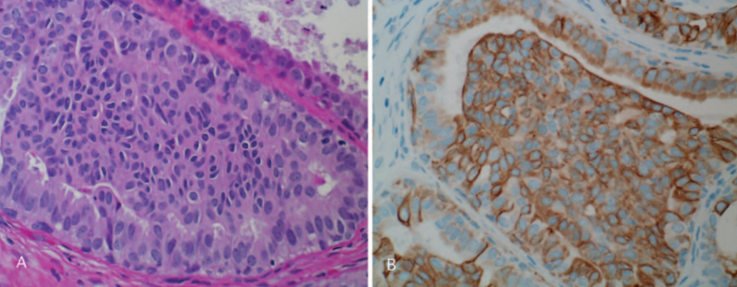 Immunohistochemistry to Breast Lesions