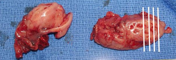 Figura M12. Amígdala palatina