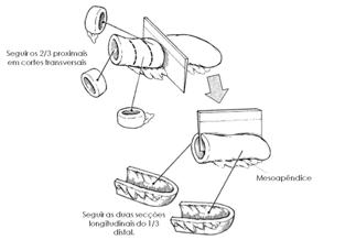 Macroscopia de apêndice ileocecal tumoral. Adaptado de: Surgical pathology dissection: an illustrated guide.